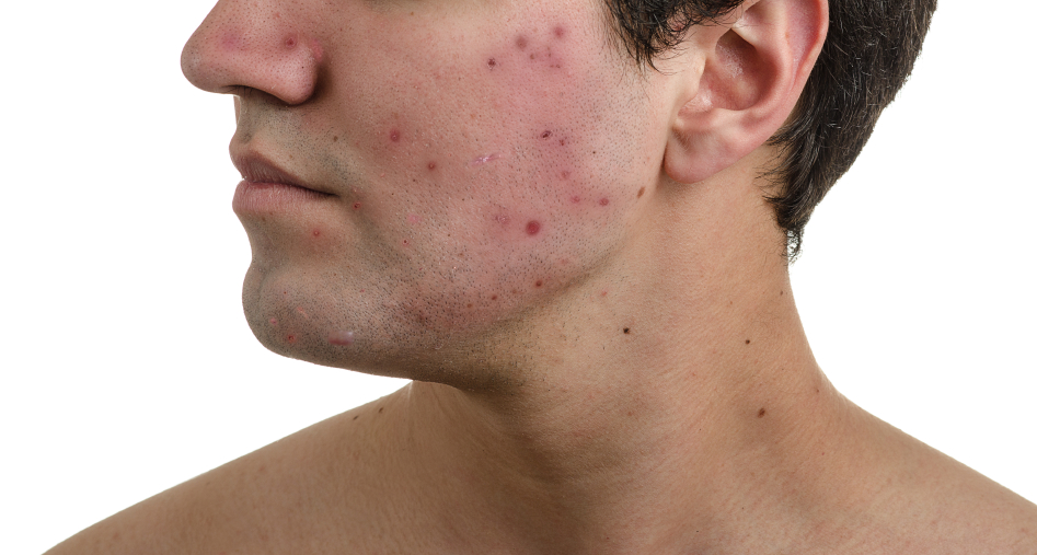 low testosterone and acne